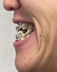 161228_4